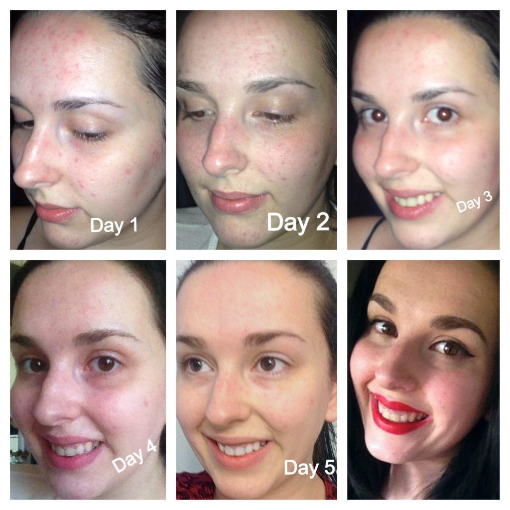 красивый и здоровый цвет лица за 5 дней